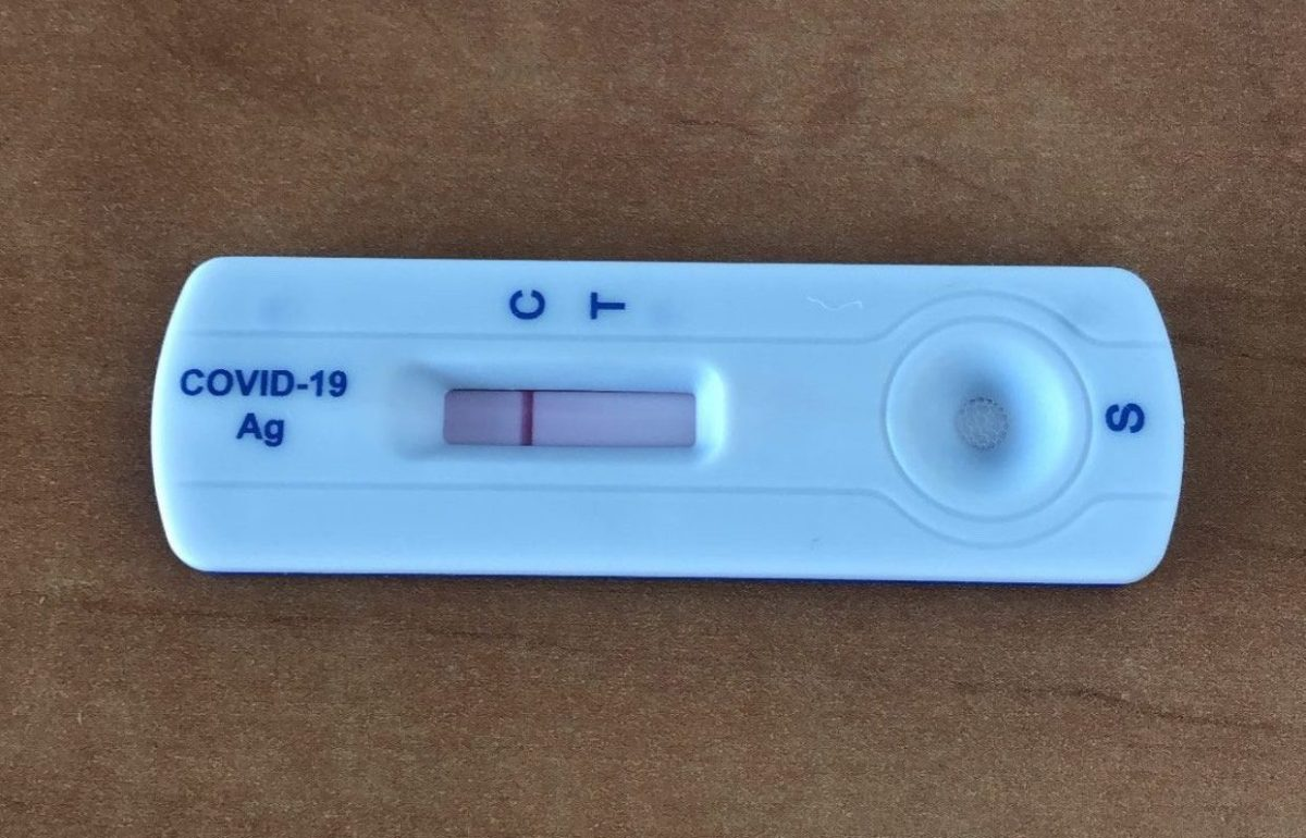 Medical Update: COVID-19 scare after student gathering on the week ofIntegration